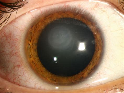 pictures of eye herpes picture 1