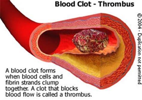 cholesterol anticoagulant picture 7