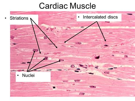 cardiac muscle picture 3