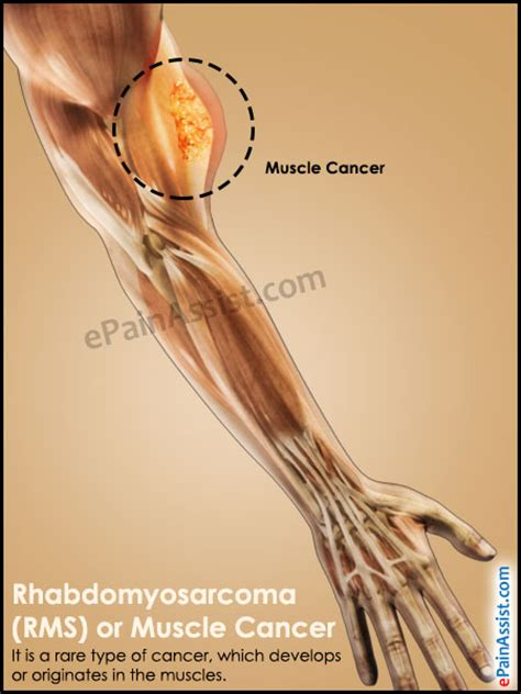 cancer of the muscle picture 1