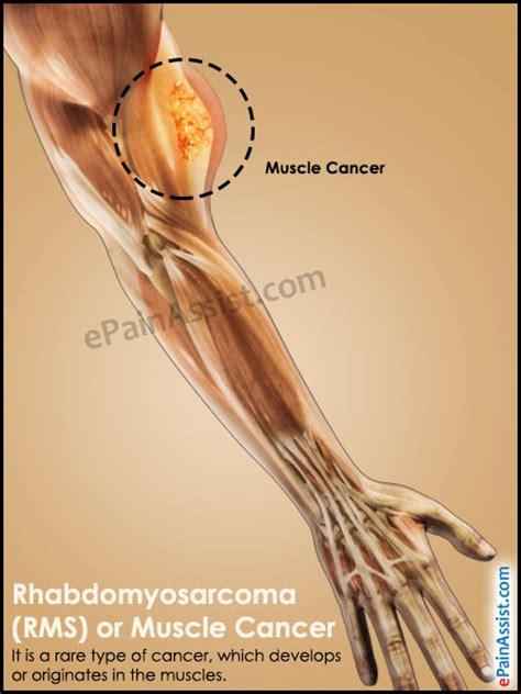 rhabdomyosarcoma of the bladder picture 14