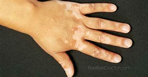 fungal skin rash picture 9