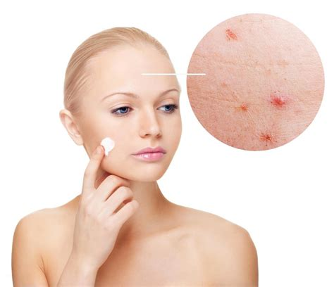 what is the cause for acne picture 14