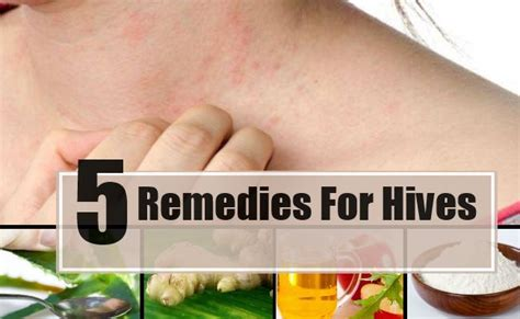 remedies for hives picture 3
