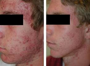 laser acne treatment picture 2