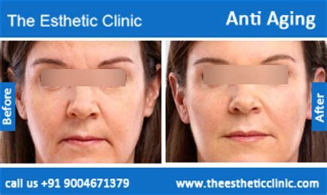 where in mumbai india revitol anti ageing cream picture 9
