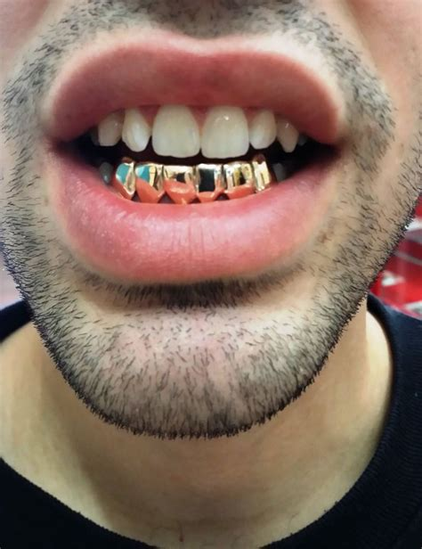 fulton street gold teeth picture 11