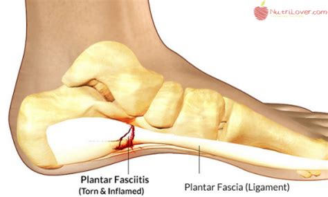cure for muscle fasciae picture 15