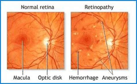 norman diabetic retinopathy picture 7