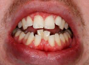 crowded teeth picture 14