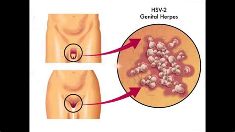 what symptoms can you get from herpes picture 11