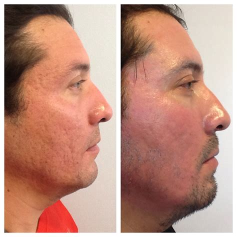co2 laser acne scar treatment picture 5