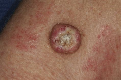 squamous cell skin cancer picture 2