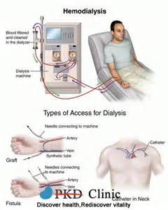 Extremely low blood pressure in hemodialysis picture 9