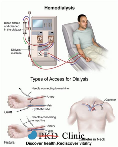 consequences of low bp in dialysis patients picture 6