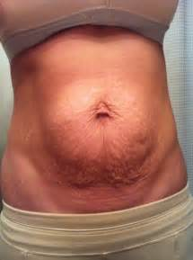can infected stretch mark cause stomach pain picture 14