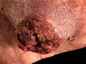 tumor with h and hair picture 5