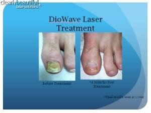 laser for nail fungus in wisconsin picture 6