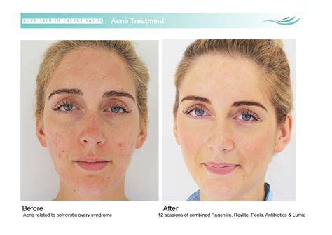 acne after ovary removal picture 5