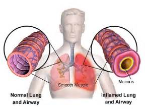 can smoke inhalation cause dysphonia picture 3