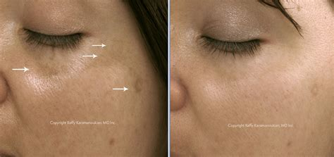 cure of skin discoloration picture 12