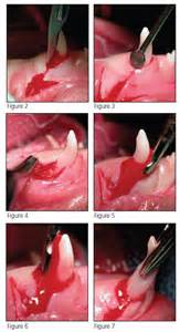 dental tooth extraction of the canine teeth picture 2