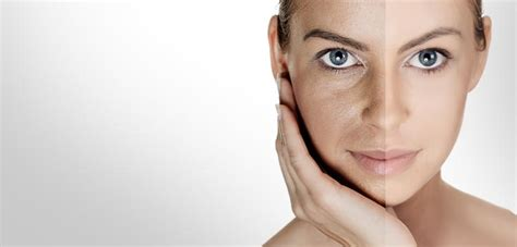 ageing skin picture 13