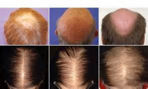 propecia for hair loss picture 17