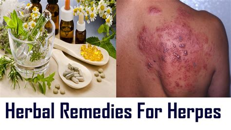 natural treatment for herpes picture 6
