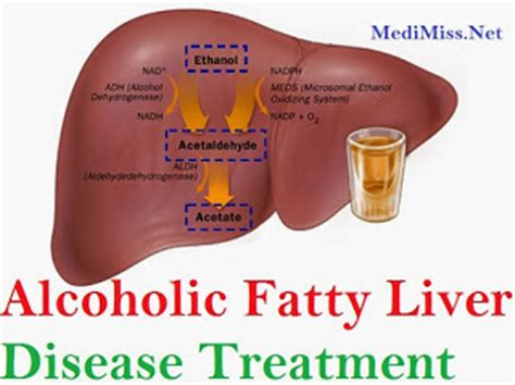 treatment for liver disease picture 2