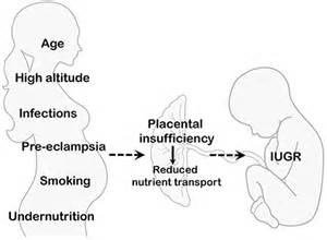 causes of decreased placental blood flow picture 9