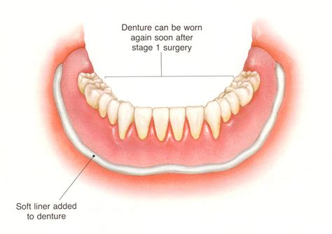 can h be added to denture picture 11