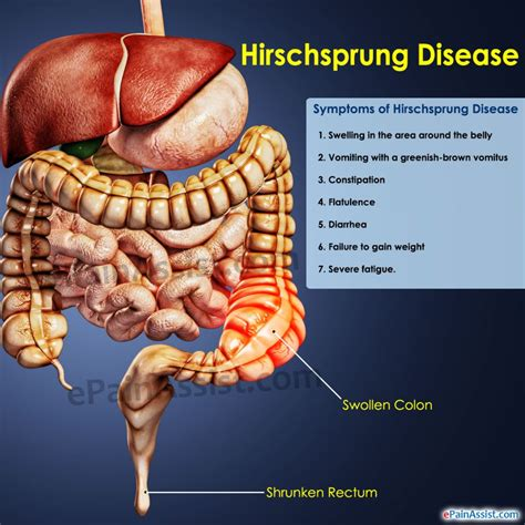 constipation and colon diseases picture 5
