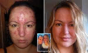 burn victims skin cream picture 18