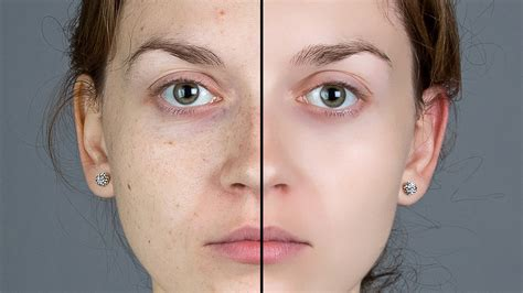 Remove acne scars picture 2