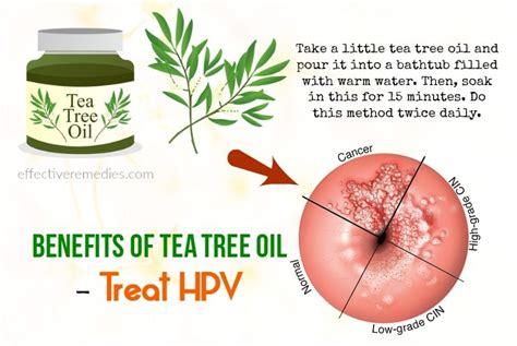tea tree oil for internal genital warts picture 1