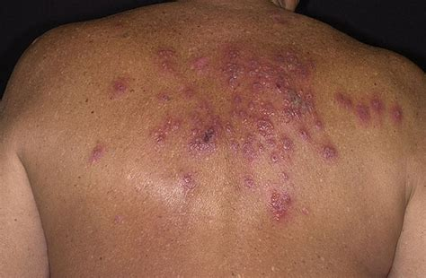 pictures of shingles skin disease picture 1