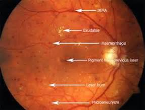 norman diabetic retinopathy picture 11