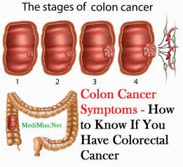 symptems of colon cancer picture 11