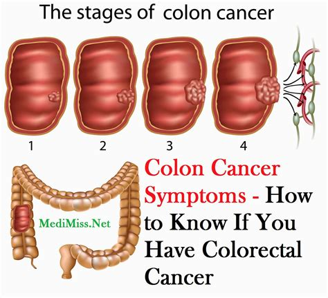 what are the symptoms of intestinal cancer picture 7