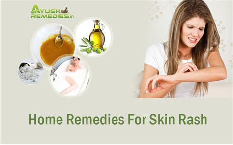 free natural cures for skin rashes picture 11