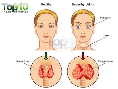 hyperthyroid in men picture 9