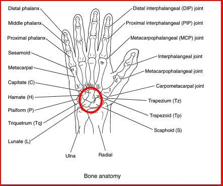 joint pain in hands picture 2
