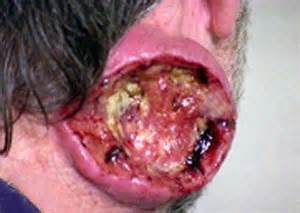 wart on his neck gross picture 1