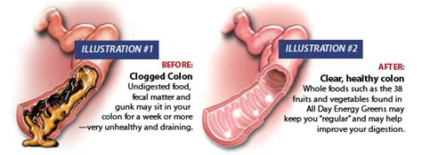 do colon cleansers cause bleeding picture 13