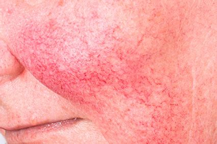 couperose skin problem picture 13