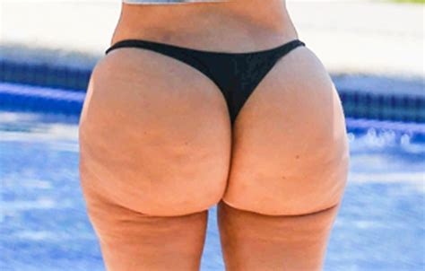 cellulite booty picture 5