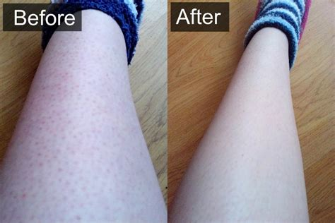 cure for ingrown hair picture 1