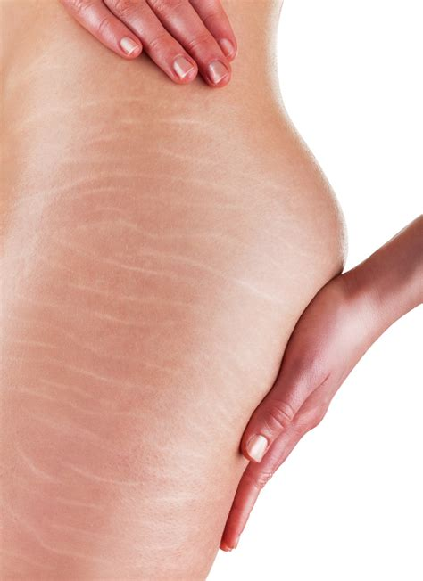 cellulite and stretch mark picture 3