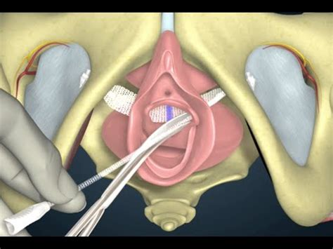 what does a bladder sling look like in picture 5